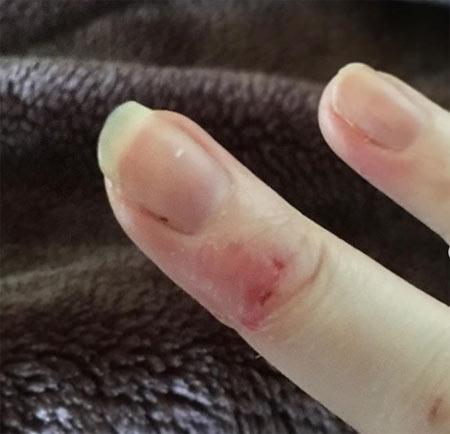 dermatophagia :biting finger skin 3