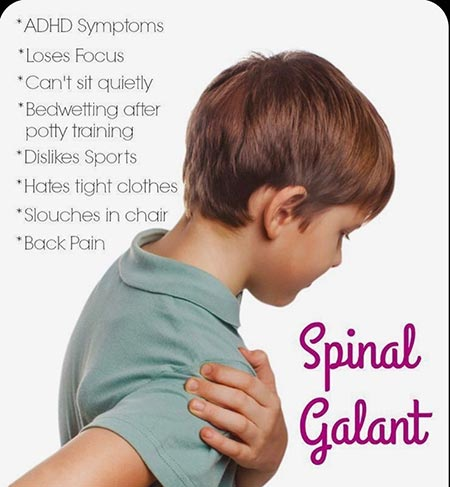 spinal galant reflex and adhd 1