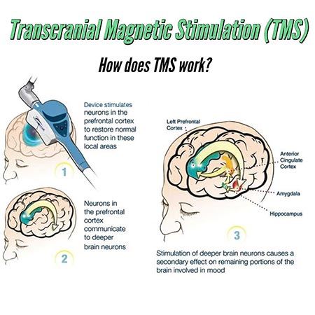 transcranial magnetic stimulation (tms) 1